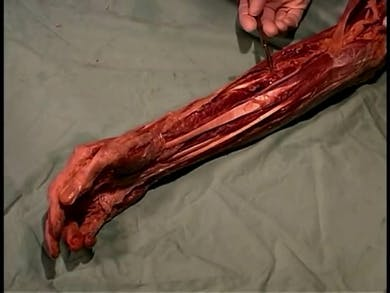 Human Anatomy Dissection 23 (part 1 of 2) Forearm and Hand by Minnay Worldwide Inc